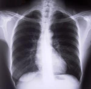 can laser cure tuberculosis?