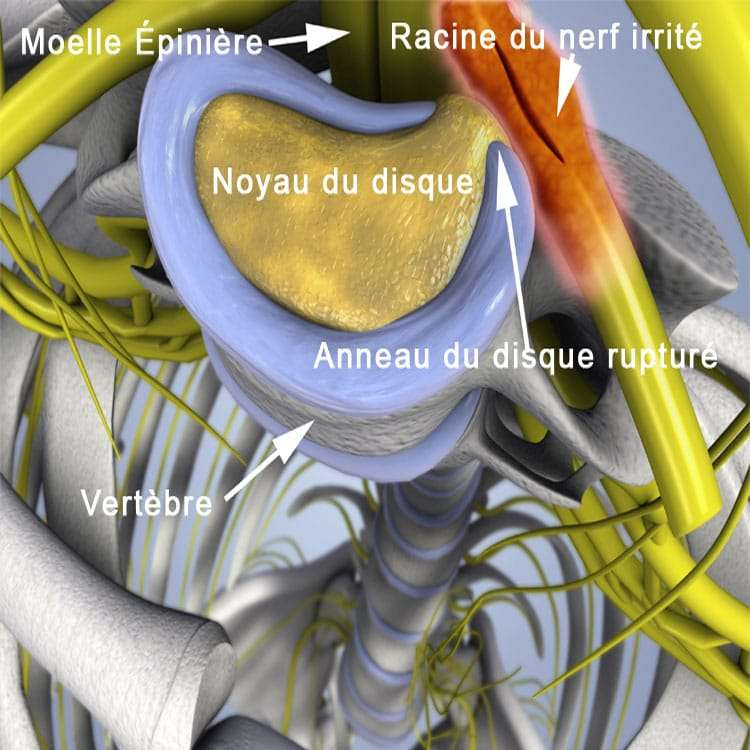 , Décompression neurovertébrale, Clinique Tagmed, Clinique Tagmed